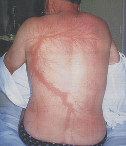 lightning strike scar